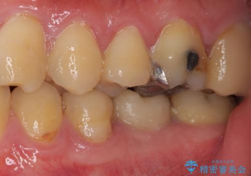 セラミッククラウンによる奥歯のむし歯治療の治療前