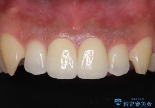 捻れた出っ歯の前歯 オールセラミッククラウンによる審美治療の治療後