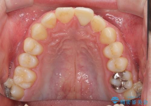 ぶつけた前歯 変色歯をオールセラミッククラウンにの治療後