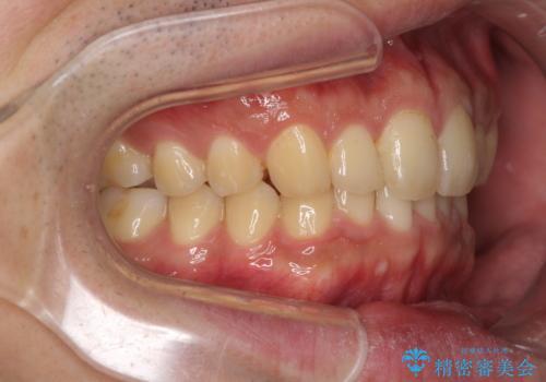 深い咬み合わせと前歯のデコボコの改善 インビザラインによる矯正治療の治療後