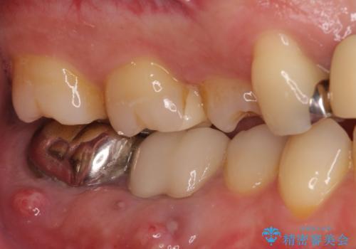 強い咬み合わせで割れてしまった奥歯 インプラントによる咬合回復の治療前