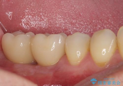 強い咬み合わせで割れてしまった奥歯 インプラントによる咬合回復の治療後