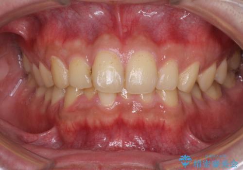 深い咬み合わせと前歯のデコボコの改善 インビザラインによる矯正治療の治療前