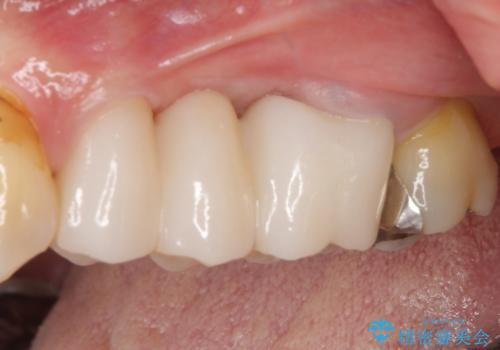 ものが挟まる 奥歯のセラミックブリッジ再製作の治療後