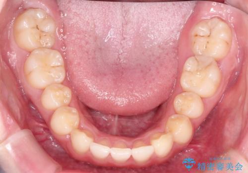 前歯のねじれをきれいにしたい インビザラインによる見えない矯正治療の治療後