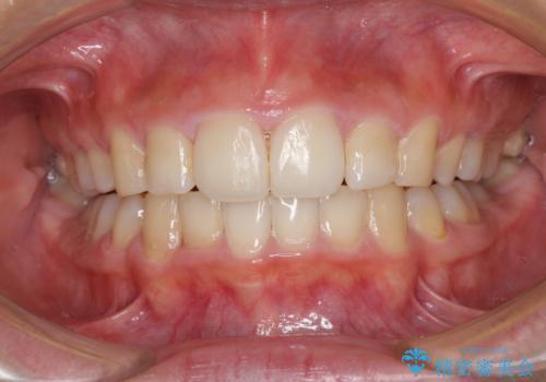 口が閉じられない 抜歯矯正で口元をスッキリとの治療後