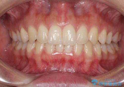 ディープバイトと前歯のデコボコを治したい インビザラインによる矯正治療の治療中