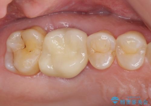 歯周外科処置を併用した奥歯の補綴治療の症例 治療後