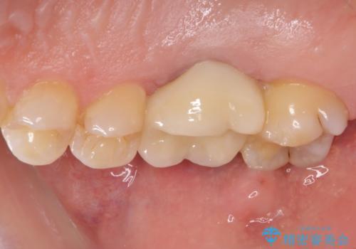 歯周外科処置を併用した奥歯の補綴治療の治療後