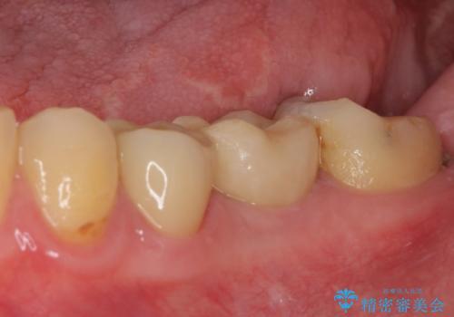 セラミッククラウンによる奥歯のむし歯治療の治療後