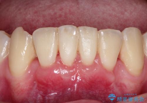 下顎前歯の歯肉退縮 結合組織を用いた根面被覆の症例 治療後