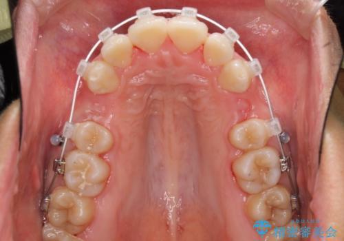 口が閉じられない 抜歯矯正で口元をスッキリとの治療中