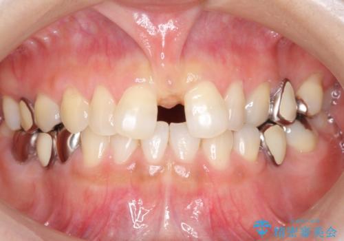 大人の上唇小帯切除 前歯のすき間の原因になりますの治療前