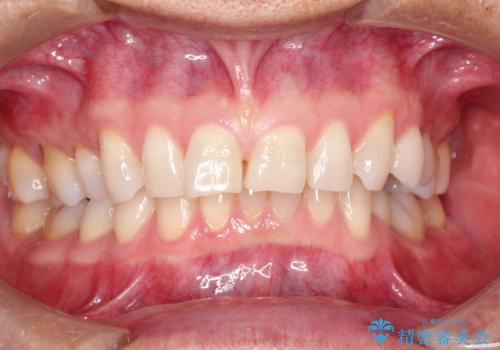 上の前歯の隙間とがたつきを<span class=