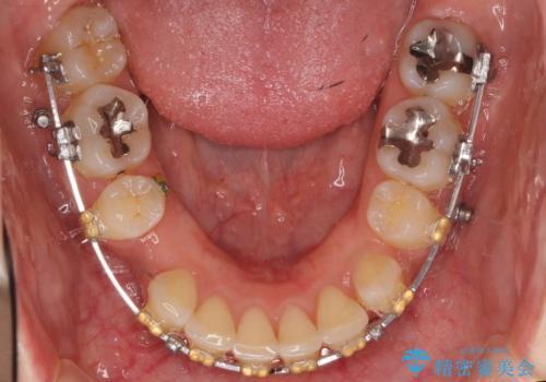 Eラインを整える治療 前歯を引っ込めますの治療中