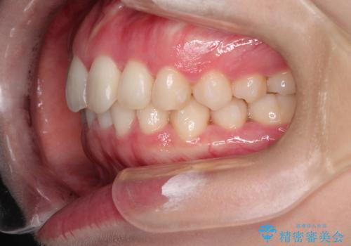 前歯のねじれをきれいにしたい インビザラインによる見えない矯正治療の治療中