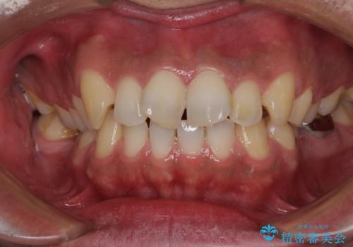 捻れた出っ歯の前歯 オールセラミッククラウンによる審美治療の治療前