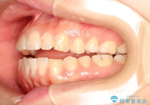 上下の前歯が当たらない インビザラインによる開咬の矯正治療の治療前