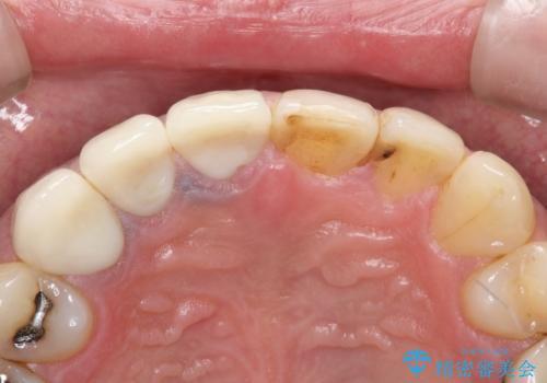 不自然な前歯のかぶせ物をオールセラミックへの治療後