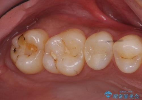 奥歯の虫歯 セラミックインレーにの症例 治療前