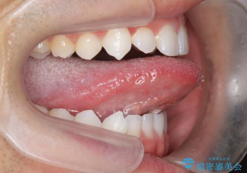 舌小帯を切りたい 発音を良くしたいの治療前