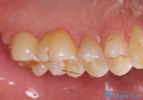 奥歯の虫歯 セラミックインレーにの治療前