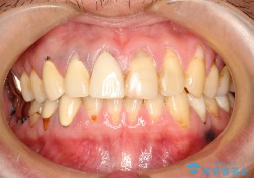 不自然な前歯のかぶせ物をオールセラミックへの症例 治療前