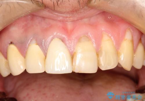 不自然な前歯のかぶせ物をオールセラミックへの治療前