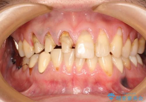 不自然な前歯のかぶせ物をオールセラミックへの治療中