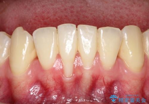 下顎前歯の歯肉退縮 結合組織を用いた根面被覆の症例 治療前