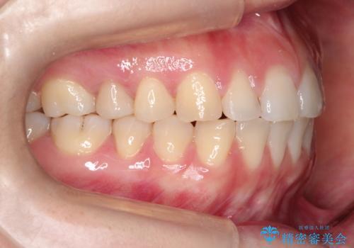 上下の前歯が当たらない インビザラインによる開咬の矯正治療の治療後