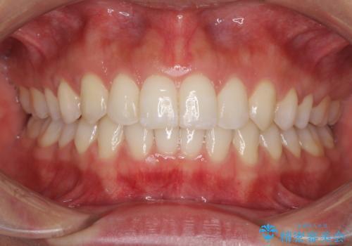 ディープバイトと前歯のデコボコを治したい インビザラインによる矯正治療の治療後