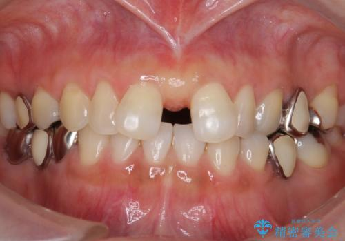 大人の上唇小帯切除 前歯のすき間の原因になりますの治療後