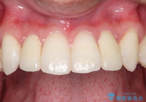 矮小歯(通常より小さな歯)をオールセラミックを装着して自然な歯への症例 治療後