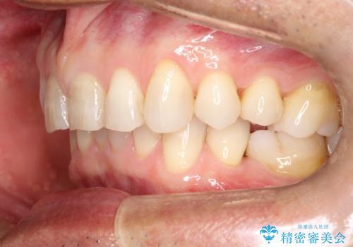 上の前歯の隙間とがたつきをインビザラインできれいな歯並びへの治療後