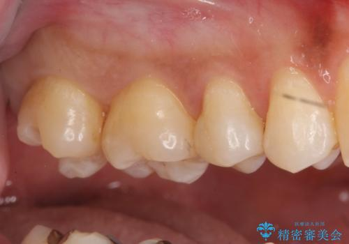 奥歯の虫歯 セラミックインレーにの治療中