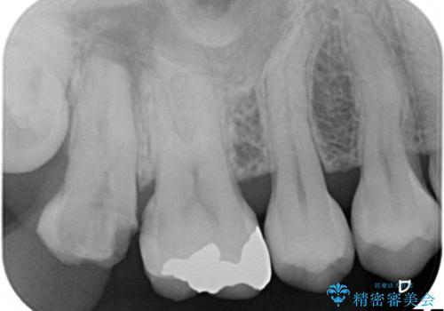 虫歯の治療 オールセラミッククラウンの治療前