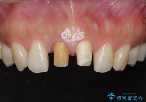 前歯の変色 根管治療と高品質セラミック歯科治療の治療中