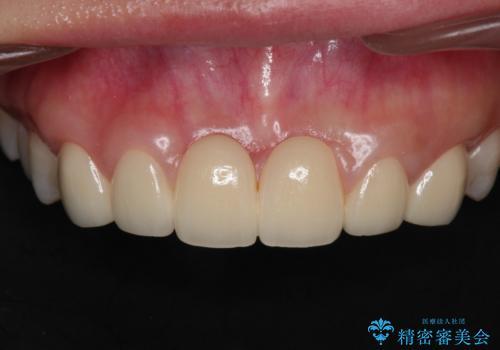 前歯 ブリッジ周囲の腫れた歯ぐきを改善の治療前