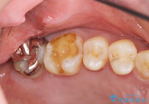 目立つ銀歯を白くしたいの治療前