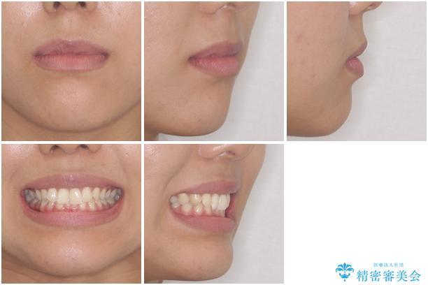 ディープバイトと前歯のデコボコを治したい インビザラインによる矯正治療の治療前(顔貌)