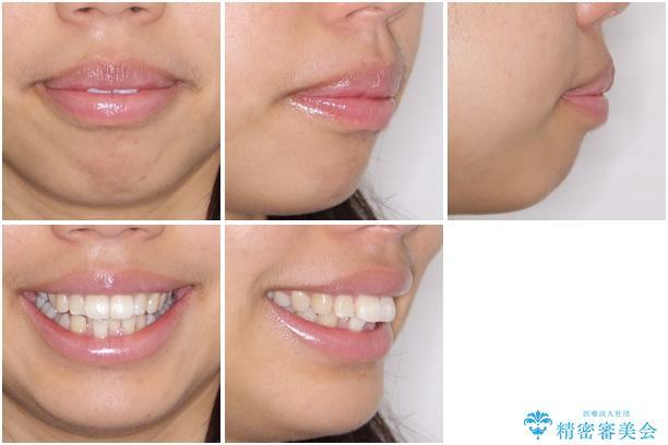 口が閉じられない 抜歯矯正で口元をスッキリとの治療前(顔貌)