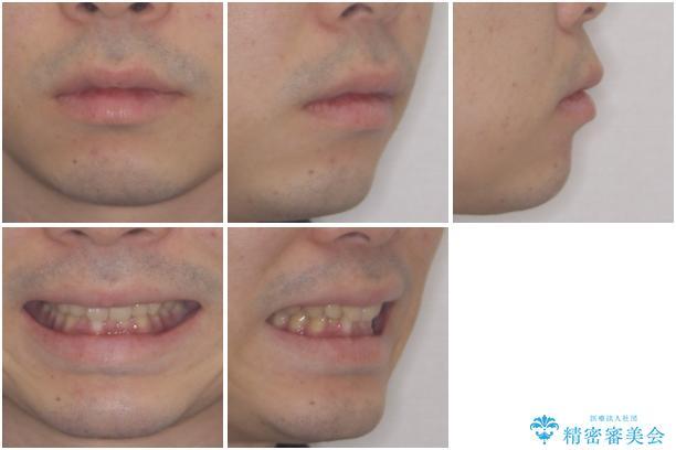 深い咬み合わせと前歯のデコボコの改善 インビザラインによる矯正治療の治療前(顔貌)