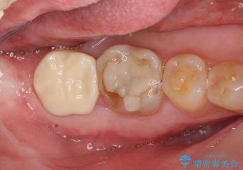 歯ぎしりによる異常に低い歯冠高径  歯周外科による解決の治療後