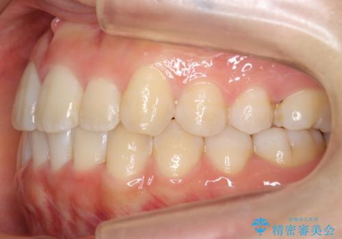 上下の前歯のがたつき 歯を抜かずに矯正の治療後