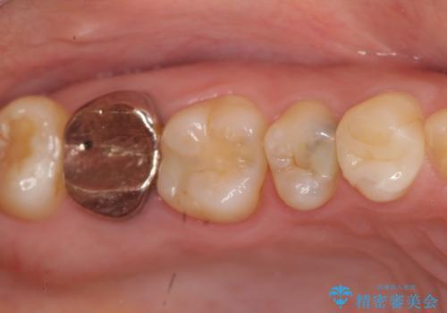 [フルジルコニアクラウン] 老朽化した銀歯を白くの症例 治療前