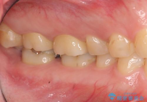 [フルジルコニアクラウン] 老朽化した銀歯を白くの治療後