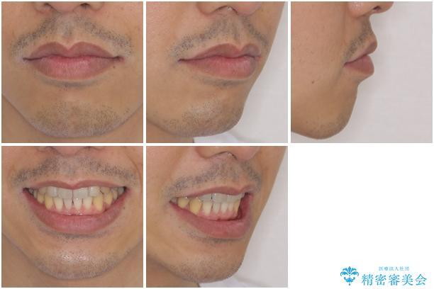矯正歯科治療と前歯の歯肉移植術の治療後(顔貌)