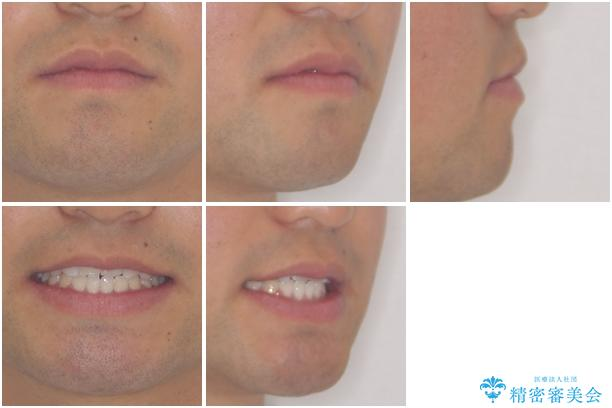 美容歯科でも断られた 著しい前歯のクロスバイトをワイヤー矯正で改善の治療後(顔貌)