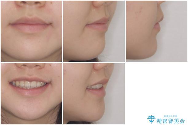 乳歯が残っている 目立たない装置での抜歯矯正の治療後(顔貌)